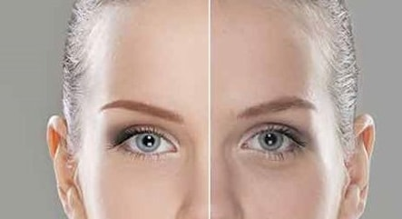 Botox + Fillers Article 3